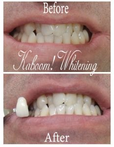 Teeth_Whitening_before_and_after_photo