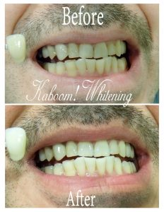 Teeth-Whitening-before&after