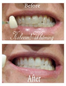 Teeth-whitening-before-after-gallery