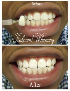 Teeth-whitening-before-after-picture