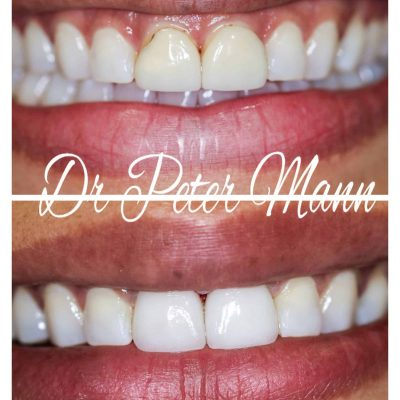 veneers-before-and-after-photo
