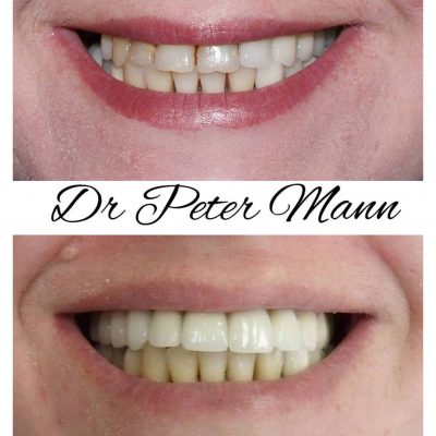 before and after porcelain crowns image