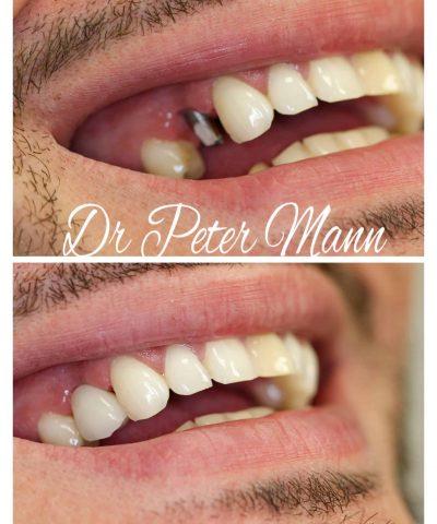 premolar-implant-crown