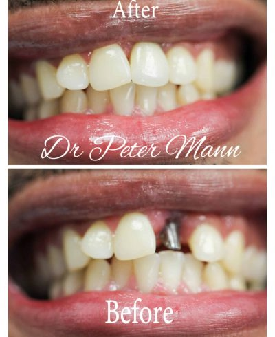front-implant-before-after