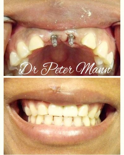 Mini-Dental-Implant-front-teeth
