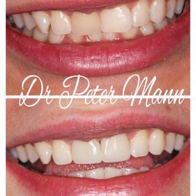 veneer-before-after-front-teeth