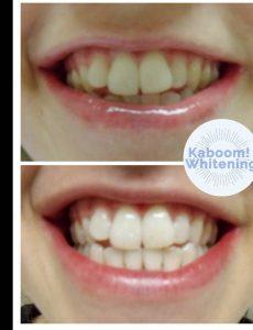 teeth whitening Kaboom